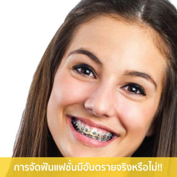 การจัดฟันแฟชั่น มีอันตรายจริงหรือไม่