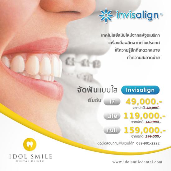 จัดฟัน Invisalign
