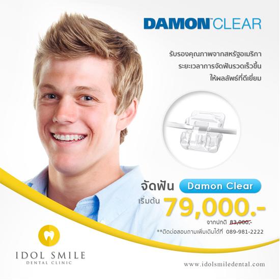 จัดฟัน Damon Clear