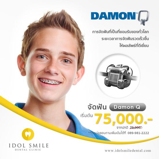 จัดฟัน Damon Q