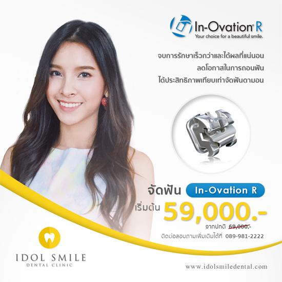 จัดฟัน In Ovation R
