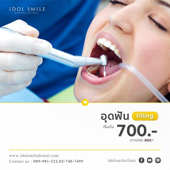 อุดฟัน