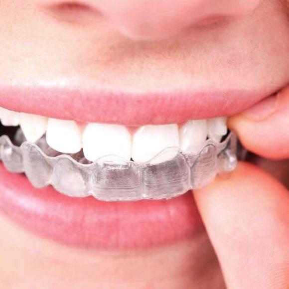 การจัดฟันแบบใส INVISALIGN