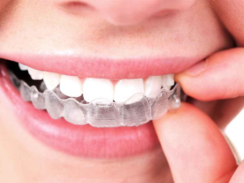 การจัดฟันแบบใส