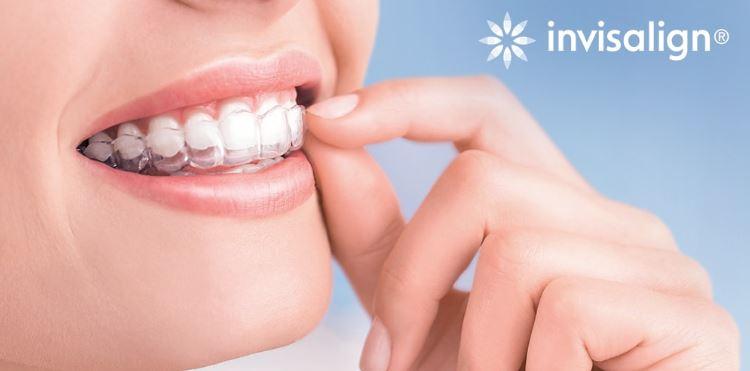การจัดฟันใสแบบ Invisalign
