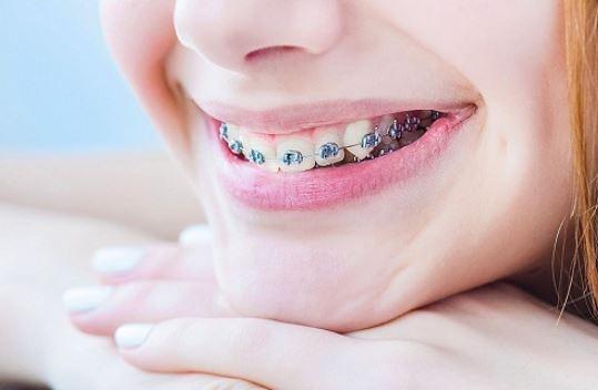 การจัดฟันจำเป็นหรือไม่และต้องทำยังไงก่อนการจัดฟัน ?
