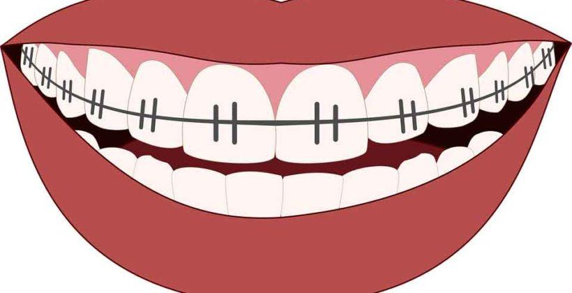ทันตกรรมจัดฟัน