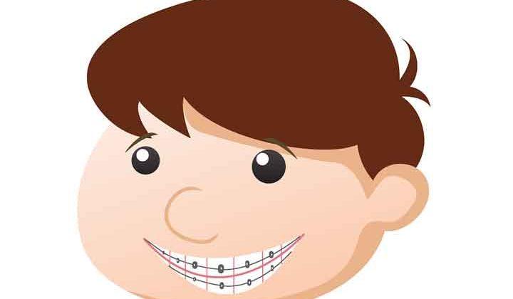 สุขภาพช่องปาก ที่ต้องดูแล ระหว่างการจัดฟัน
