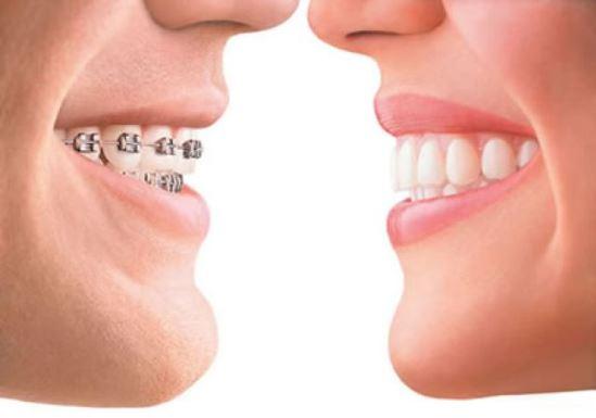ปัญหาฟันแบบไหนควรที่จะจัดฟัน ?