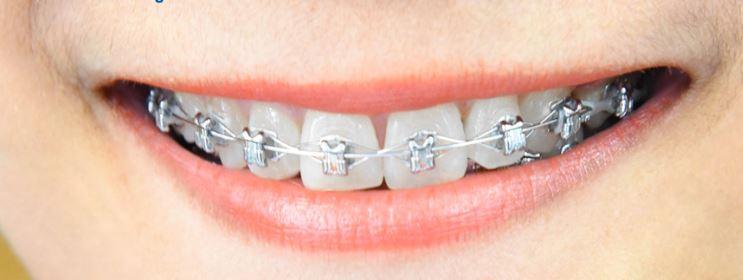 การจัดฟันแบบดามอน