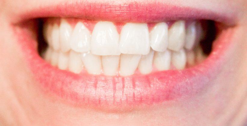 ประเภทของฟันปลอมและการดูแลรักษาฟันปลอม