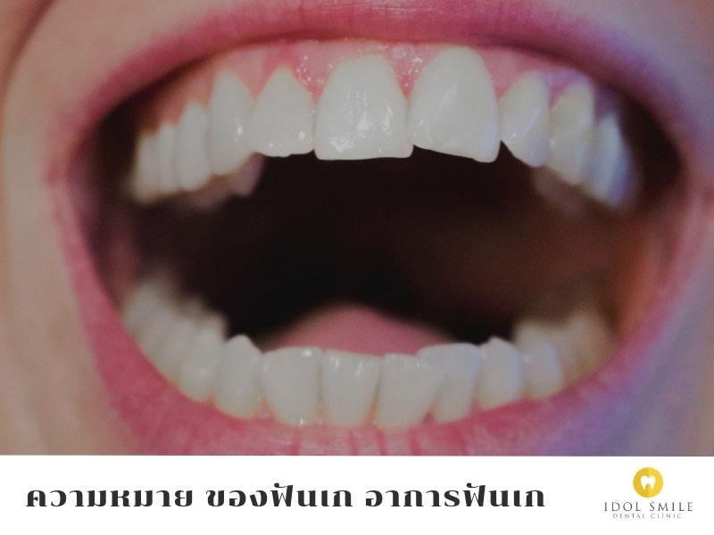 ฟันเก