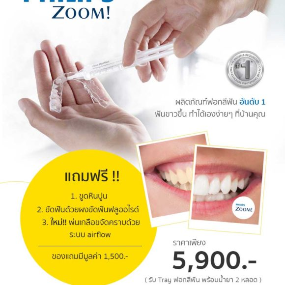 โปรโมชั่นพิเศษ ฟอกสีฟันขาว