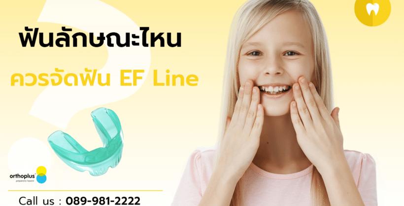 ฟันลักษณะไหน ควรจัดฟัน EF Line